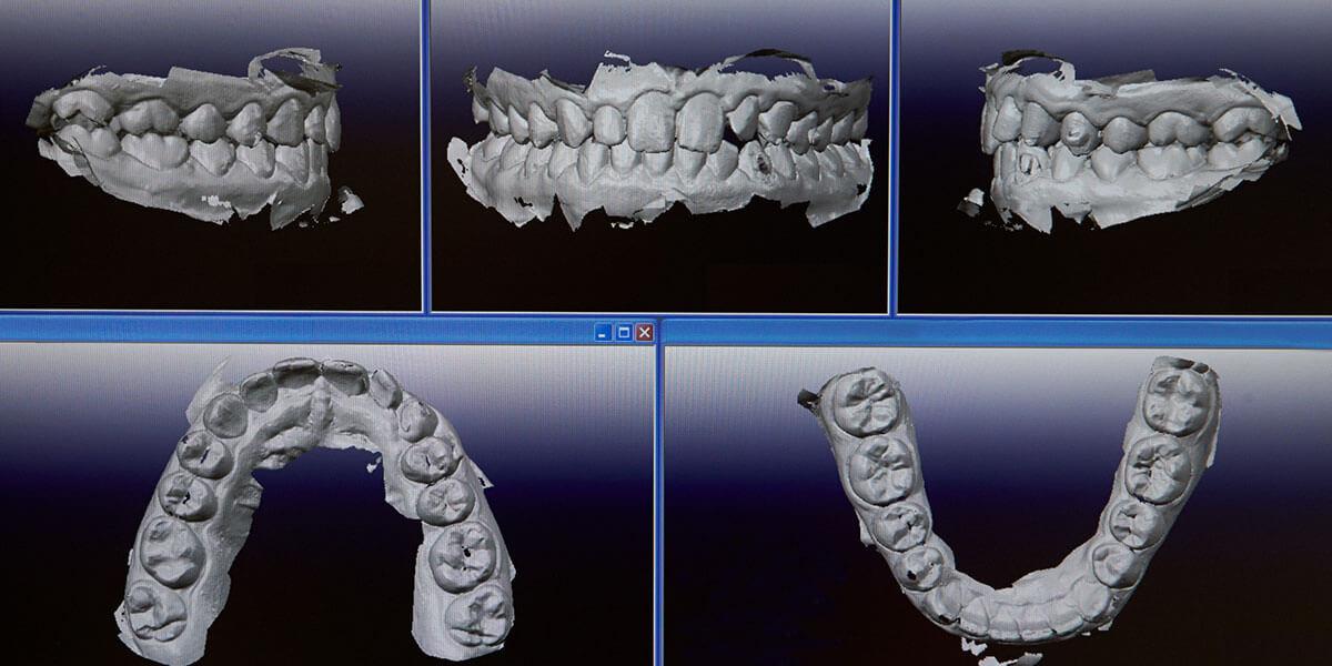 Image of Digital Impression Scans