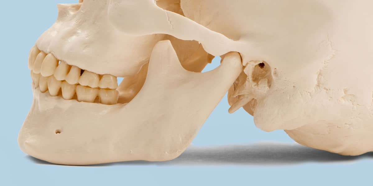 Photo of a Jaw Bone and Skull