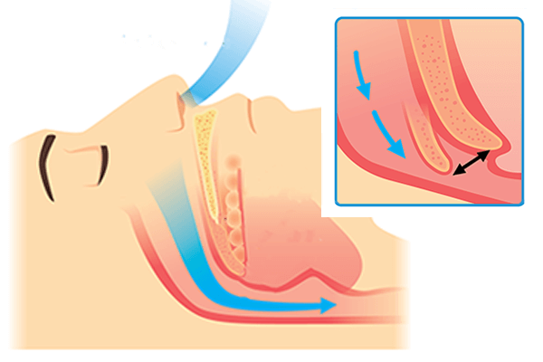 Graphic of Snoring example